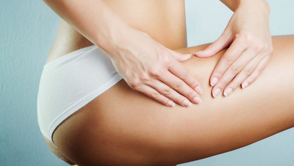 7 Effective Ways To Tackle Stretch Marks